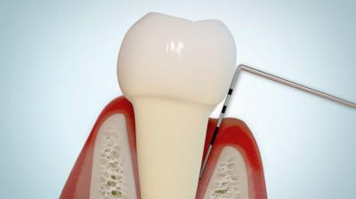 Parodontologie Braunschweig